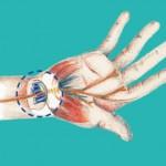 Handchirurgie Hannover Karpaltunnelsyndrom